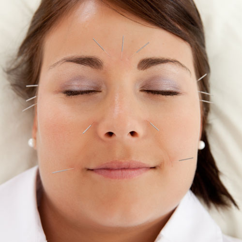 all body care kelowna facial acupuncture